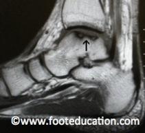 Osteochondraler Defekt am Talus 5