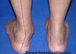 Calcaneal-Osteotomy_Figure-1
