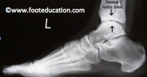 Ankle-Replacement_Figure-1