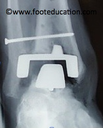 Ankle-Replacement_Figure-3