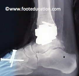 Ankle-Replacement_Figure-4