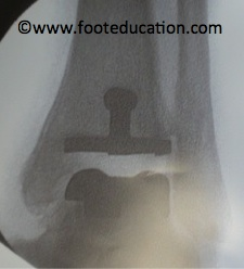 Ankle-Replacement_Figure-5