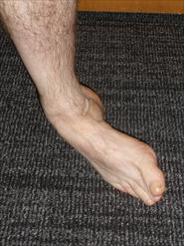 Ankle Sprain 1