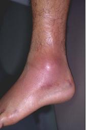 Ankle Sprains 2
