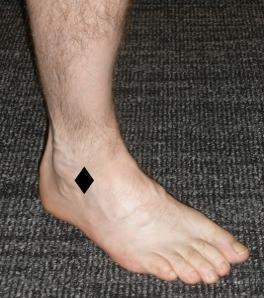 Ankle Sprains 3