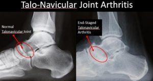 Talo-Navicular Joint Arthritis